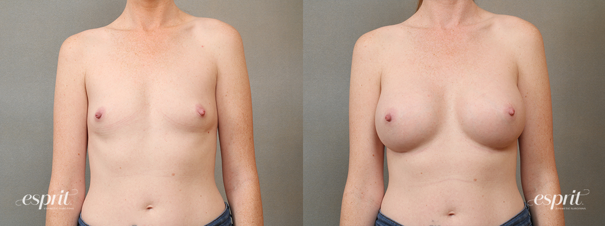 Case 4104 Breast Augmentation Before and After Front View