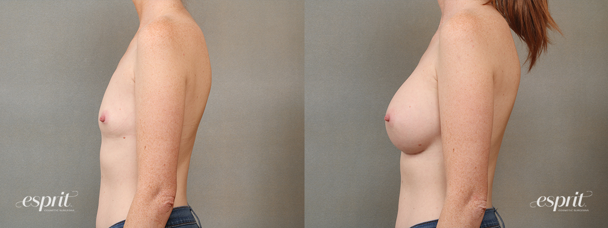 Case 4104 Breast Augmentation Before and After Left Side View