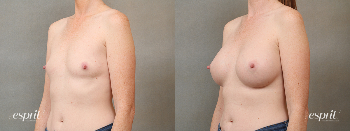 Case 4104 Breast Augmentation Before and After Left Oblique View