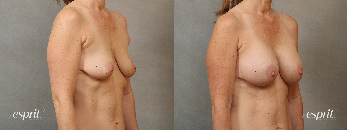 Case 4105 Breast Augmentation Before and After Right Oblique View
