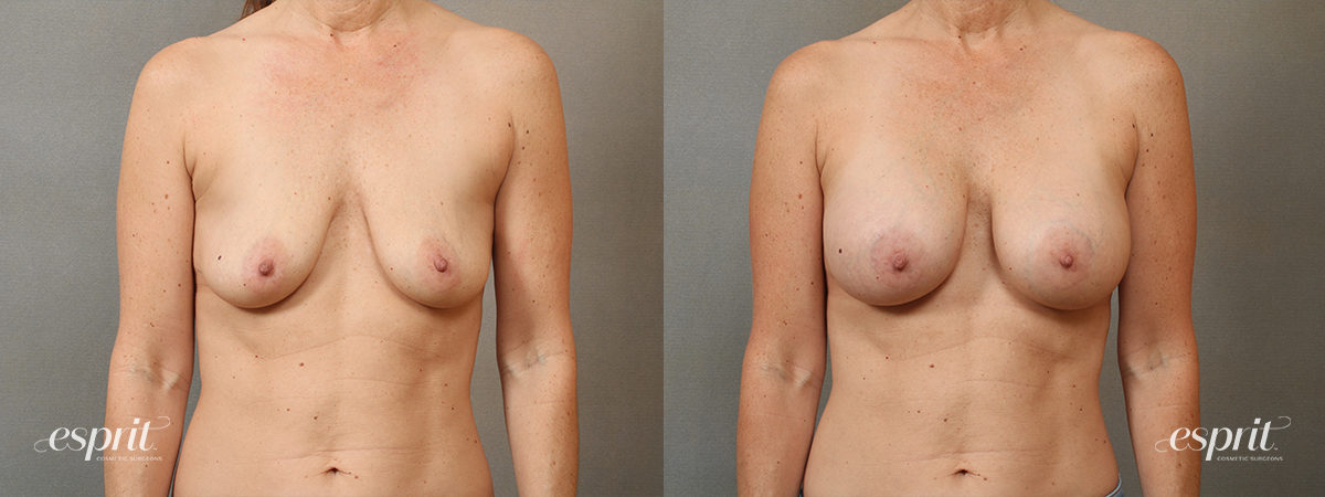 Case 4105 Breast Augmentation Before and After Front View