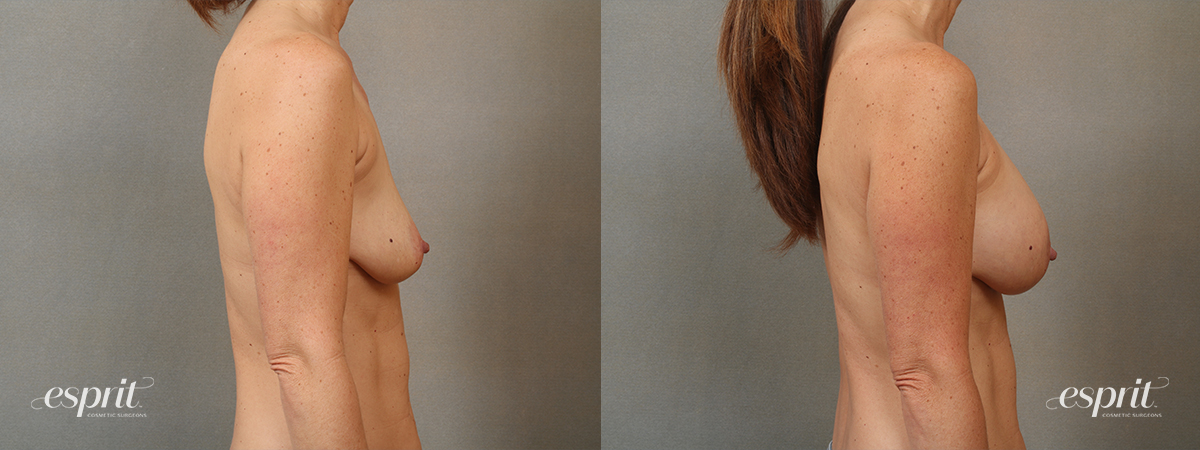 Case 4105 Breast Augmentation Before and After Right Side View