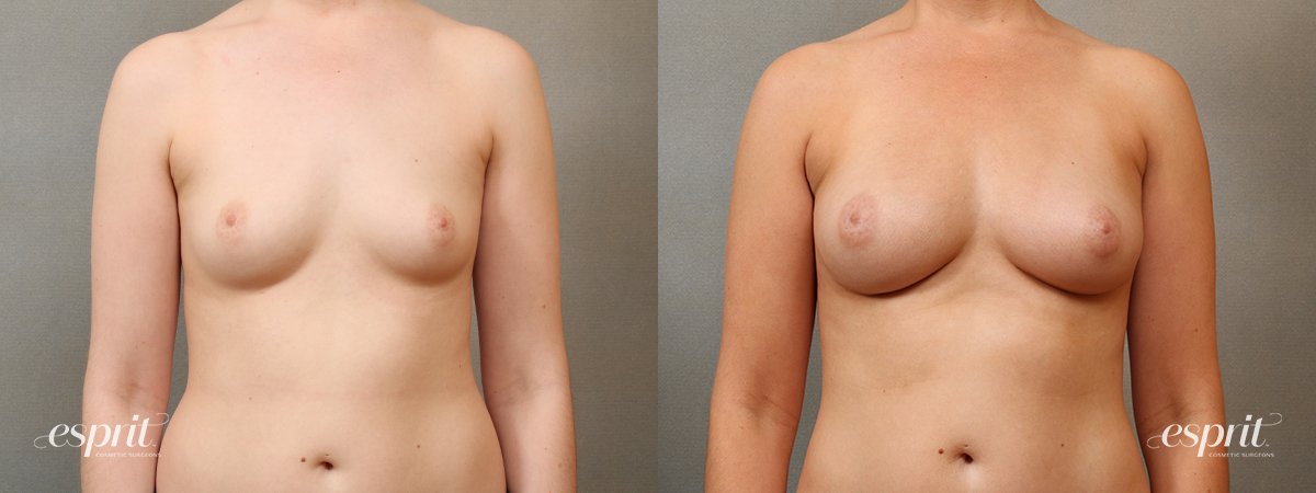 Case 2203 Fat Grafting Before and After Front View