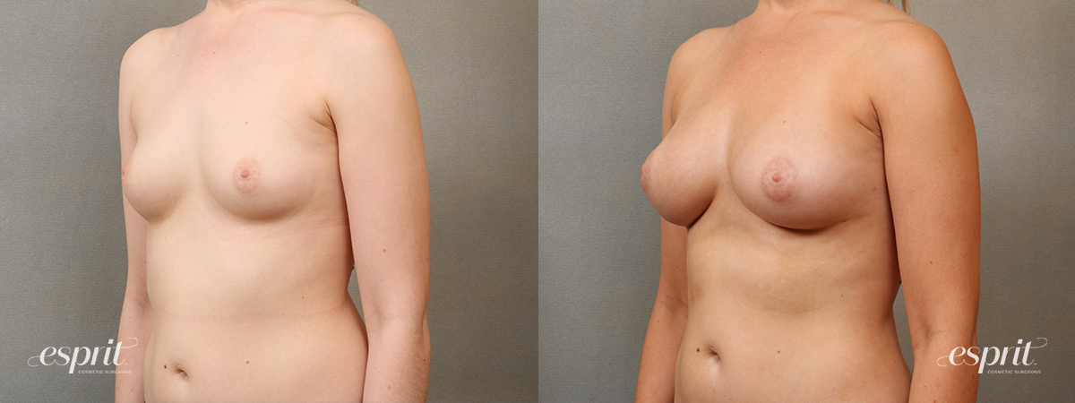 Case 2203 Fat Grafting Before and After Left Oblique View