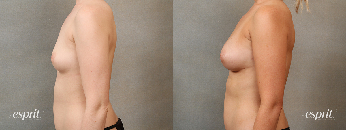 Case 2203 Fat Grafting Before and After Left Side View