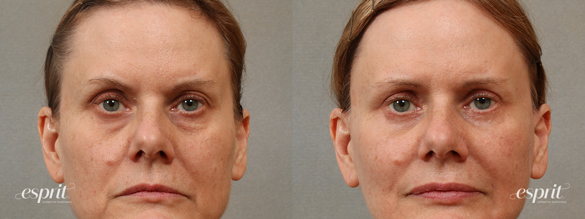 Case 3105 Blepharoplasty Before and After Front View