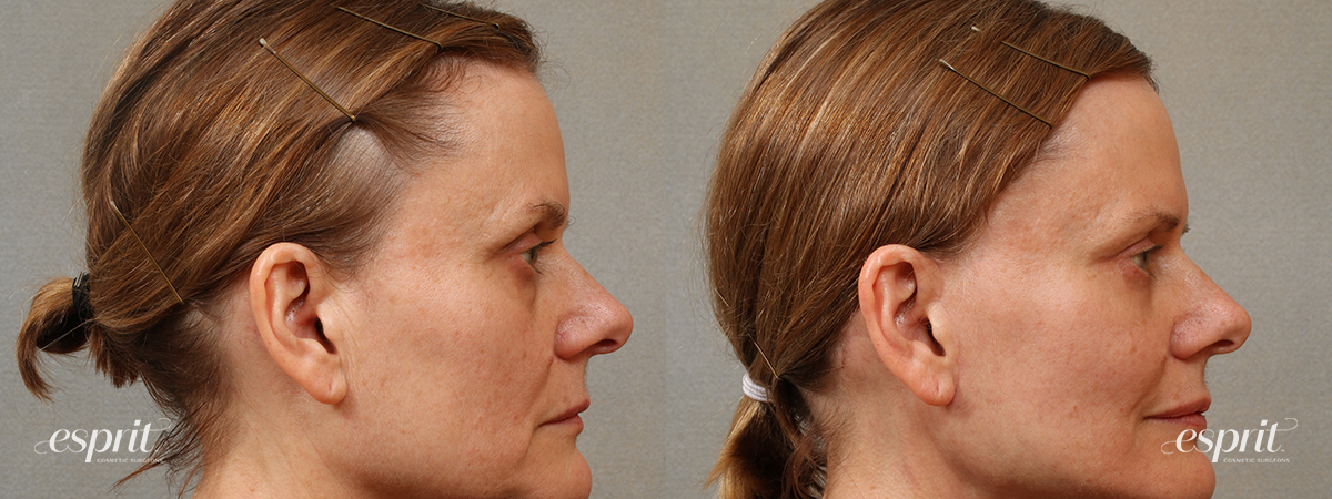 Case 3105 Blepharoplasty Before and After Right Side View