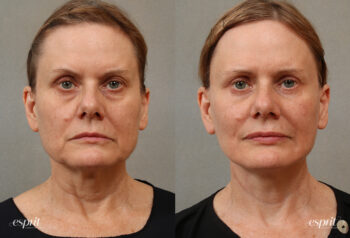 Case 3105 Face & Neck Lift Before and After Front View