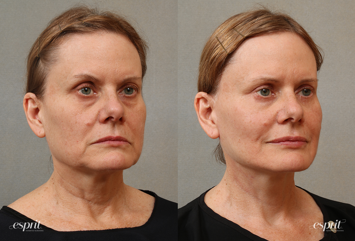 Case 3105 Face & Neck Lift Before and After Right Oblique View
