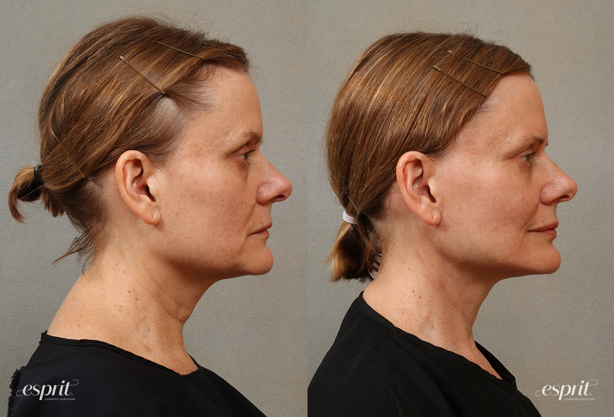 Case 3105 Face & Neck Lift Before and After Right Side View