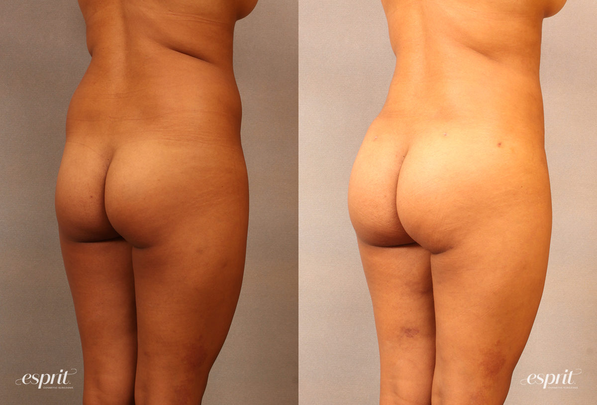 Case 2106 Brazilian Buttock Lift Before and After Rear Oblique View