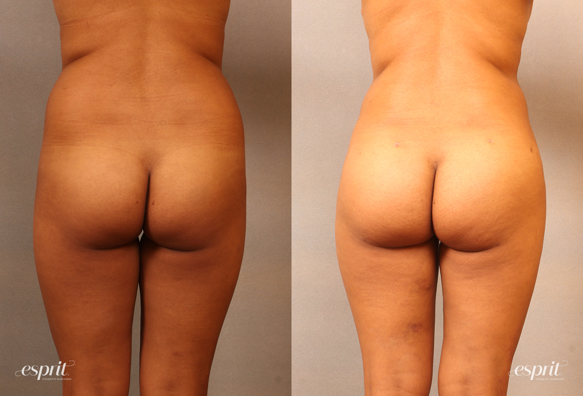 Case 2106 Brazilian Buttock Lift Before and After Rear View