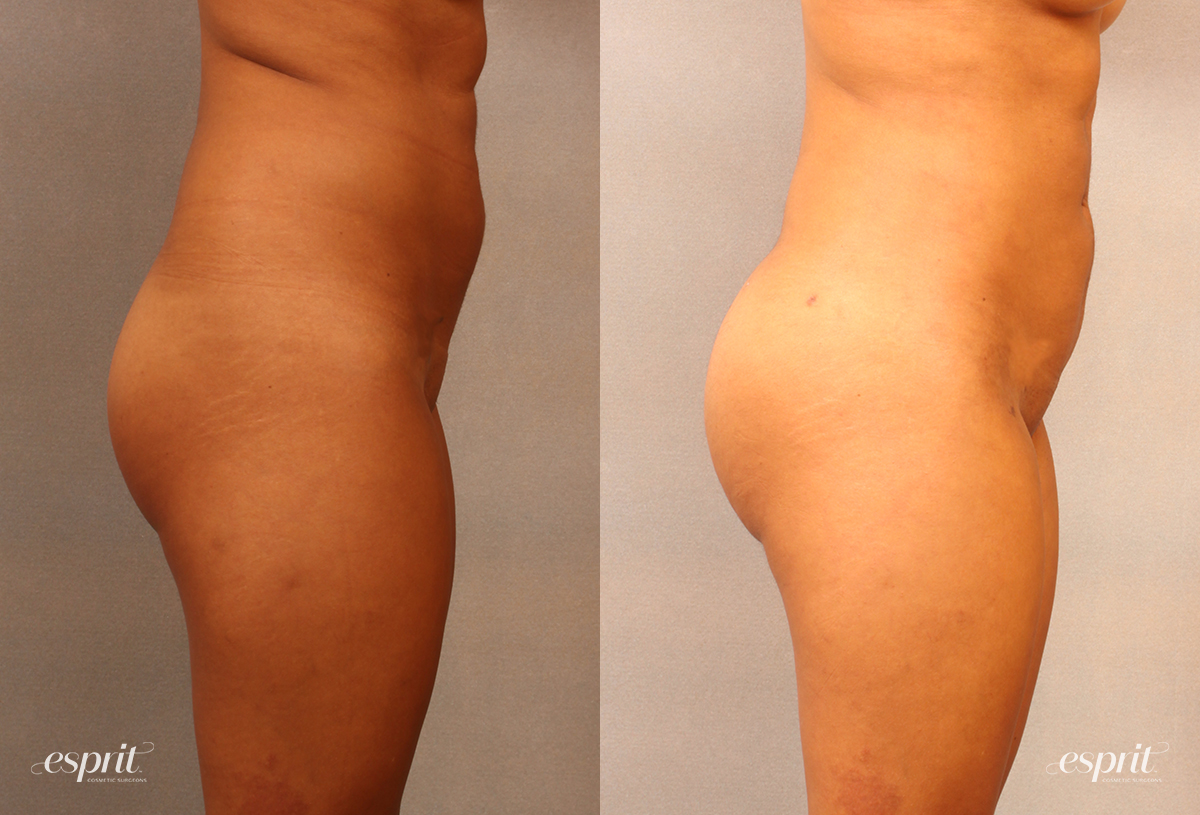 Case 2106 Brazilian Buttock Lift Before and After Right Side View