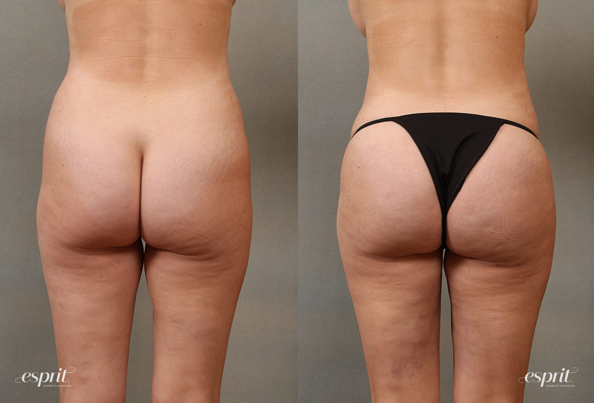 Case 2108 Brazilian Buttock Lift Before and After Rear View
