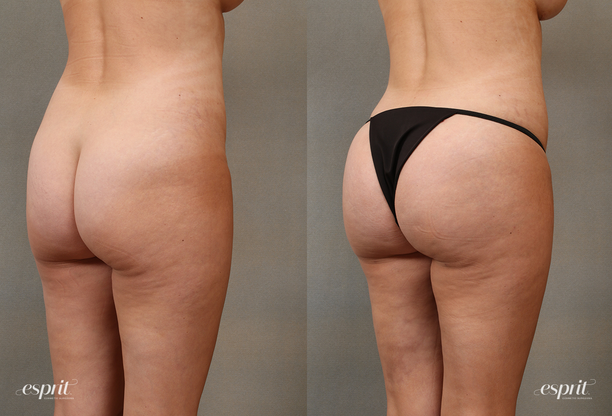 Case 2108 Brazilian Buttock Lift Before and After Rear Oblique View