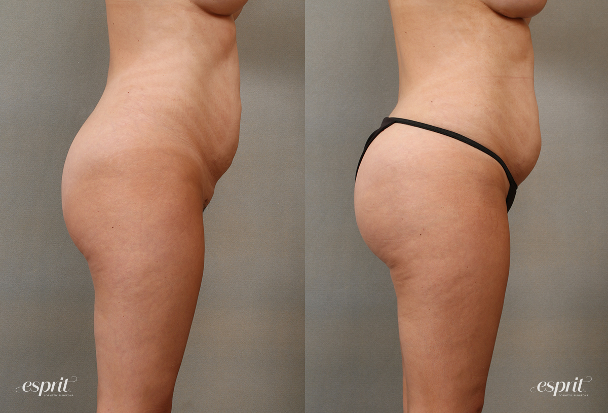 Case 2108 Brazilian Buttock Lift Before and After Right Side View