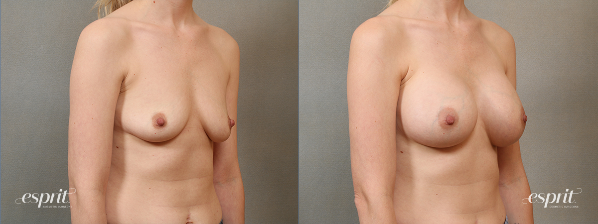 Case 4107 Breast Augmentation Before and After Right Oblique View