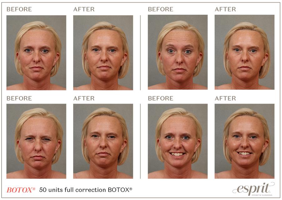 Esprit_Botox_expression_chart_Photo