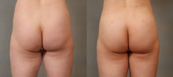 Case 2109 Brazilian Butt Lift Before and After Back View