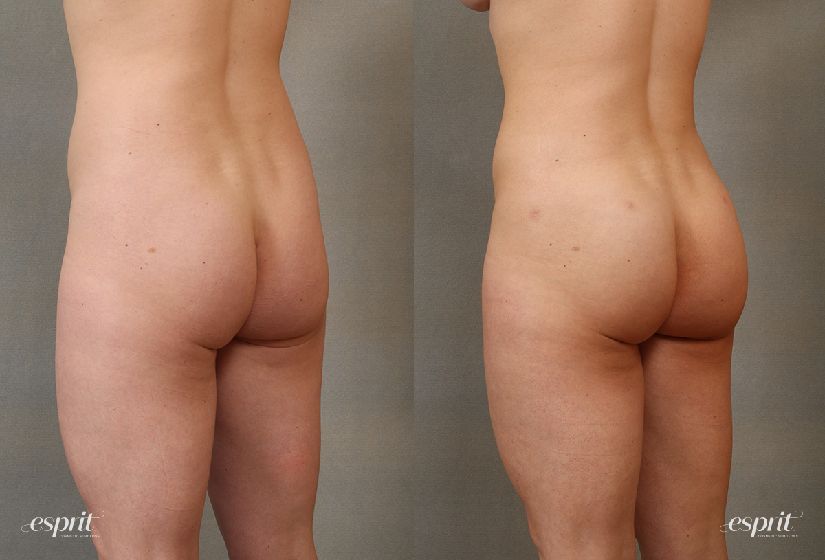 Case 2109 Brazilian Butt Lift Before and After Rear Oblique View