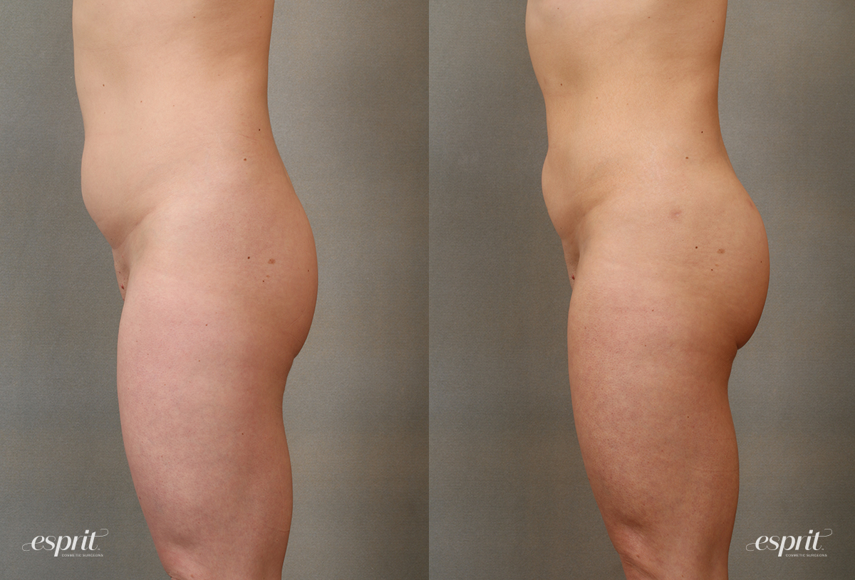 Case 2109 Brazilian Butt Lift Before and After Left Side View
