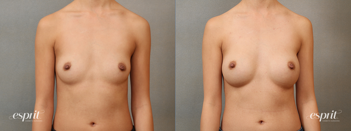 Case 4108 Breast Augmentation Before and After Front View