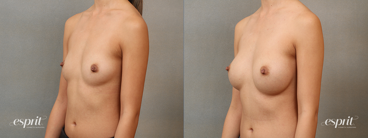 Case 4108 Breast Augmentation Before and After Front Oblique View
