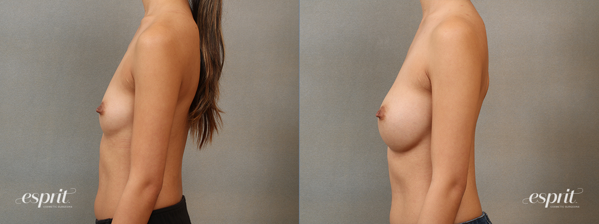 Case 4108 Breast Augmentation Before and After Left Side View