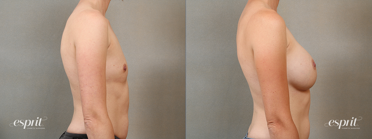 Case 4109 Breast Augmentation Before and After Right Side View