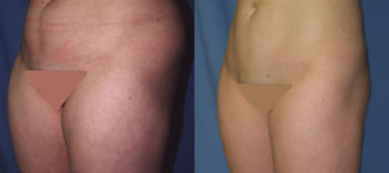 Case 1192 Liposuction Before and After Front Oblique View