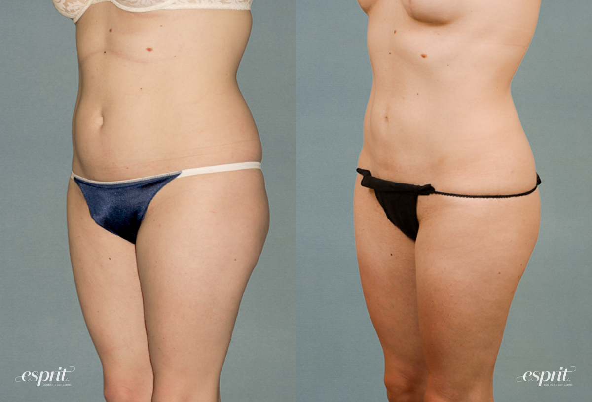 Case 1220 Liposuction Before and After Front Oblique View