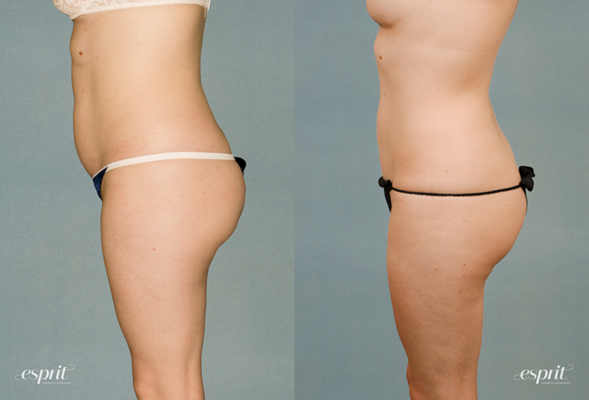Case 1220 Liposuction Before and After Left Side View