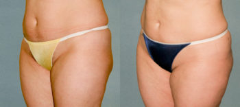 Case 1222 Liposuction Before and After Front Oblique View