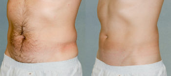 Case 1223 Liposuction Before and After Front Oblique View