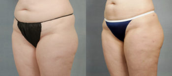 Case 1233 Liposuction Before and After Front Oblique View