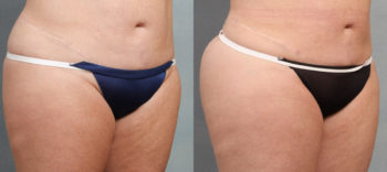 Case 1485 Liposuction Before and After Right Oblique View