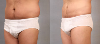 Case 1663 Liposuction Before and After Left Oblique View