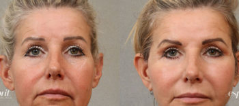 Case 3107 Blepharoplasty Before and After Front View
