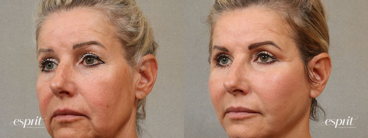 Case 3107 Blepharoplasty Before and After Left Oblique View
