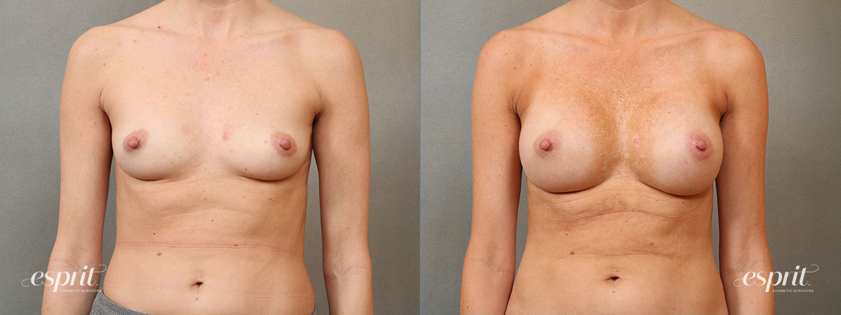 Case 4110 Breast Augmentation Before and After Front View