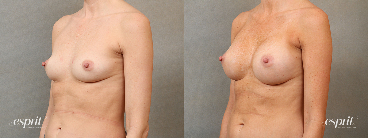 Case 4110 Breast Augmentation Before and After Left Oblique View