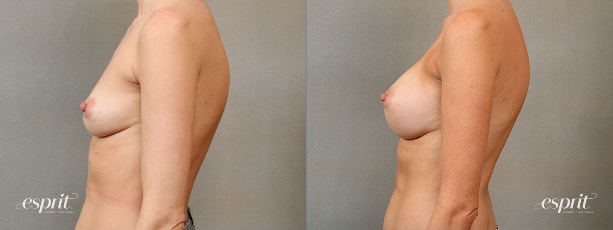 Case 4110 Breast Augmentation Before and After Left Side View