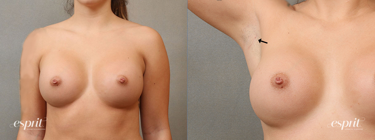 Case 4111 Breast Augmentation Front Scar