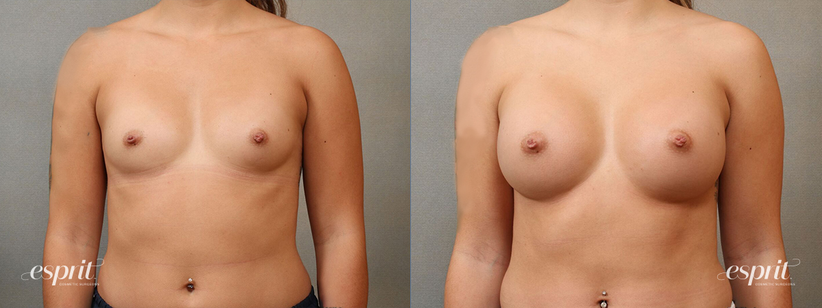 Case 4111 Breast Augmentation Before and After Front View