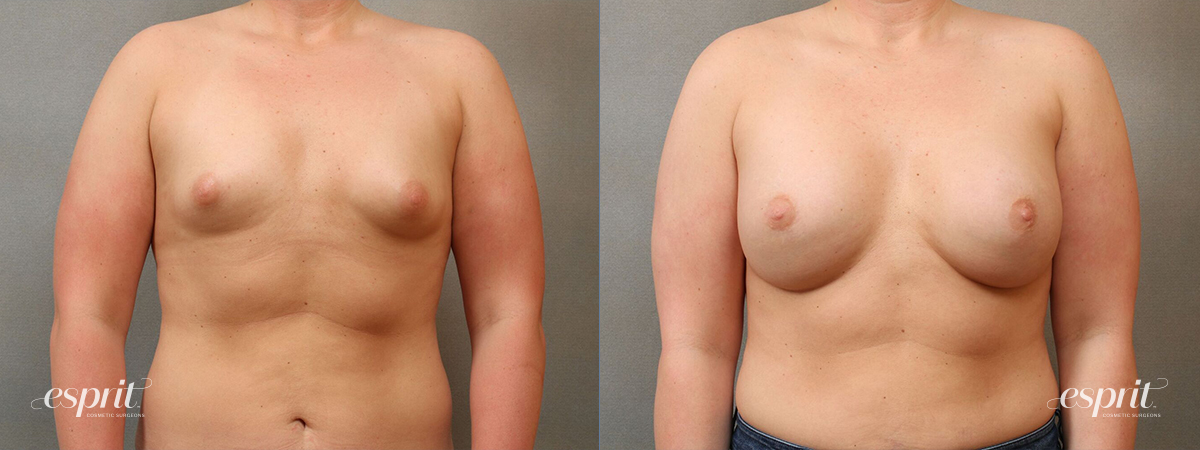 Case 4112 Breast Augmentation Before and After Front View