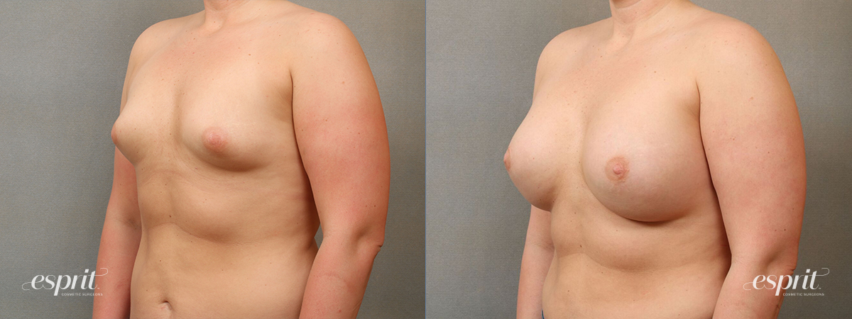 Case 4112 Breast Augmentation Before and After Left Oblique View