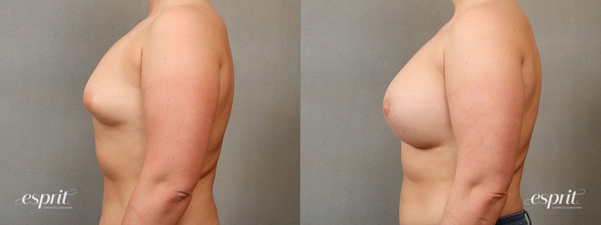 Case 4112 Breast Augmentation Before and After Left Side View