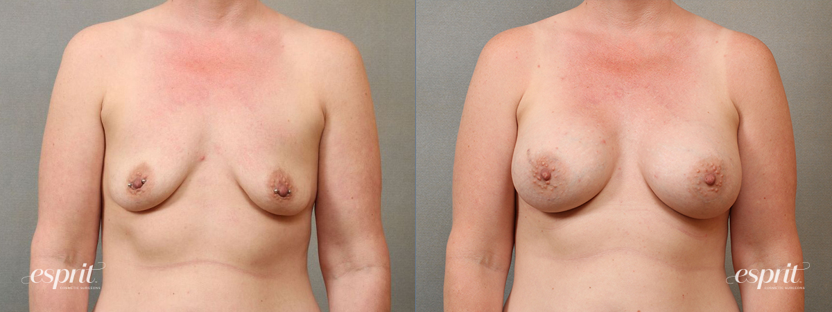 Case 4113 Breast Augmentation Before and After Front View