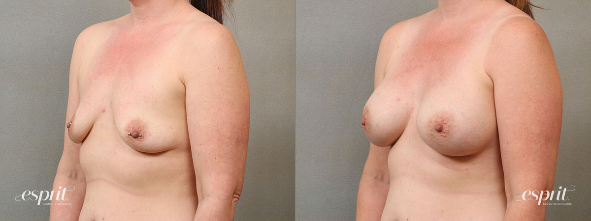 Case 4113 Breast Augmentation Before and After Left Oblique View