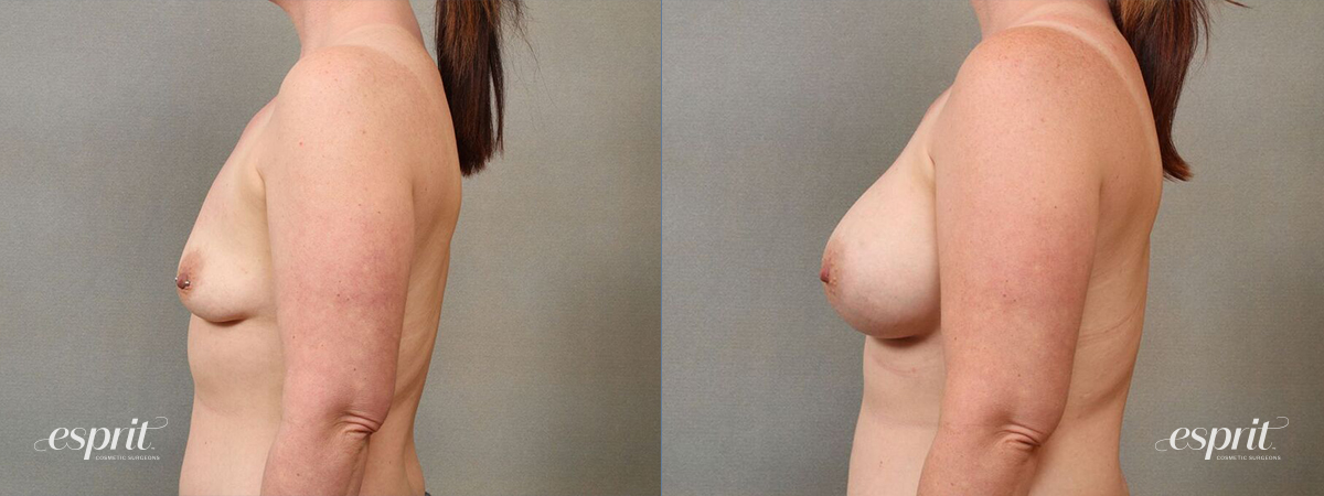 Case 4113 Breast Augmentation Before and After Left Side